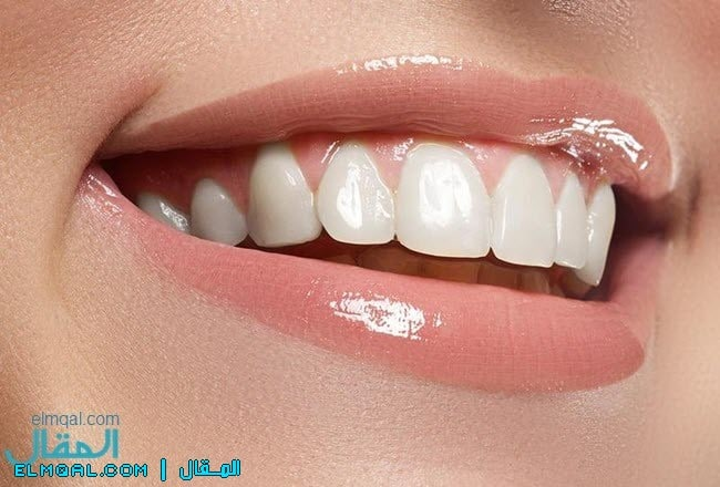 تبييض الاسنان الصحيح