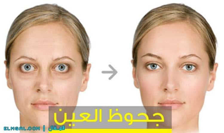 علاج جحوظ العينين جريفيز