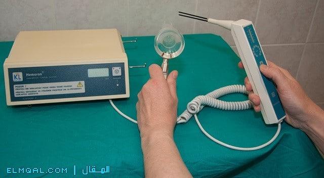 علاج البواسير بالليزر