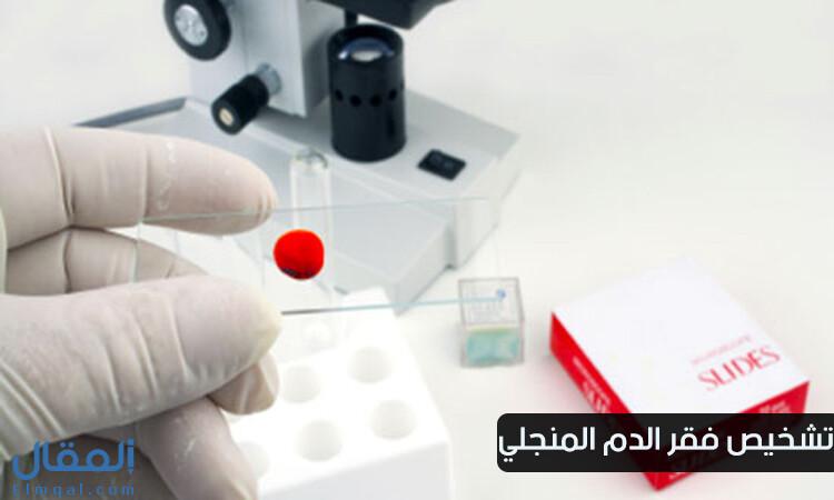 تشخيص فقر الدم المنجلي