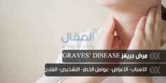 تعرف على مرض جريفز Graves Disease