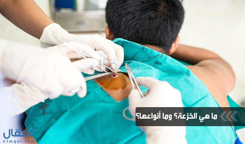 ماذا يقصد الطبيب بالخزعة أو Biopsy؟