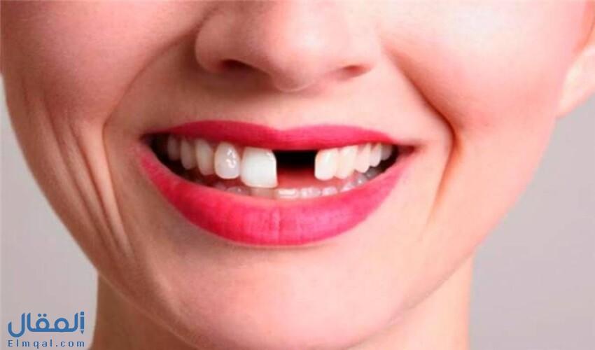 تفسير حلم سقوط الأسنان ومعناه حسب أشهر مفسري الأحلام ولكل الحالات