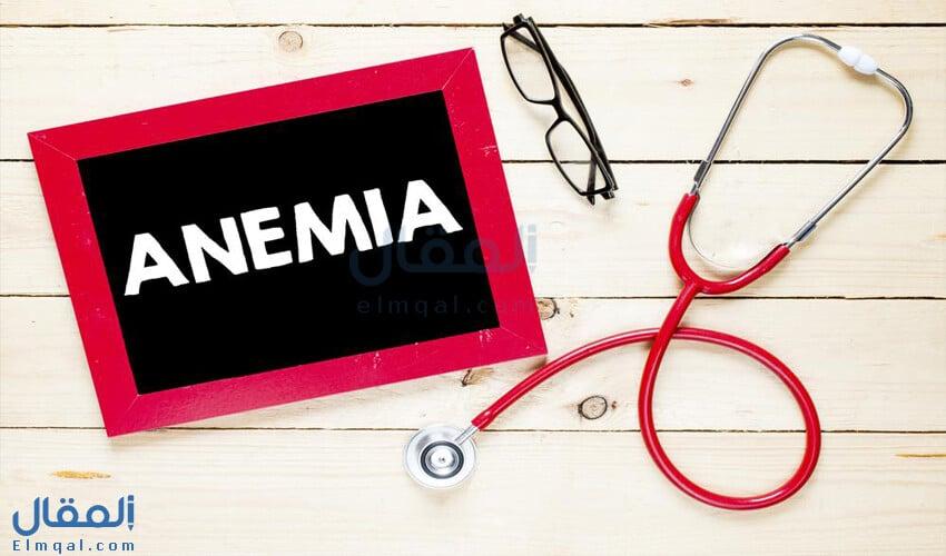 ما هو أفضل علاج لعلاج الأنيميا أو فقر الدم؟