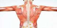 ما الفرق بين ألم الأعصاب وآلام العضلات الحادة؟ الأسباب والأعراض والعلاج