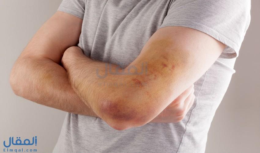 مرض الهيموفيليا: أسباب الإصابة والأنواع والأعراض والمضاعفات والعلاج