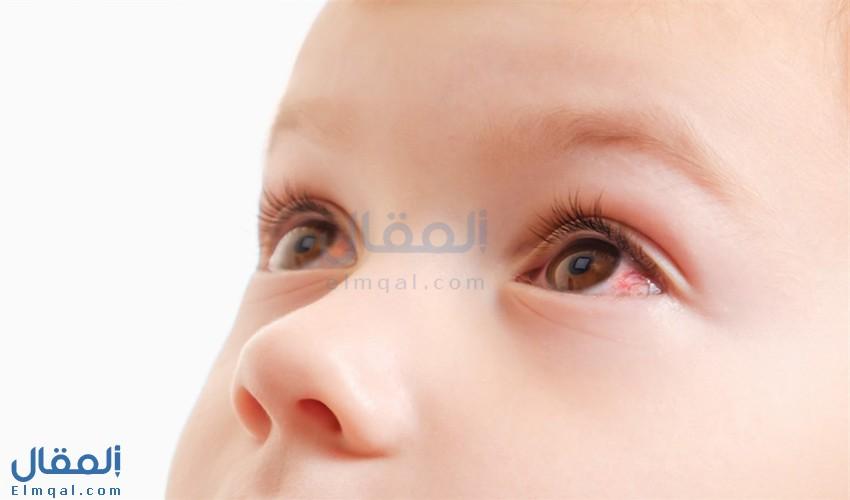 أعراض التهاب القرنية Keratitis وأسبابه وأنواعه وعلاجه ونصائح للوقاية منه