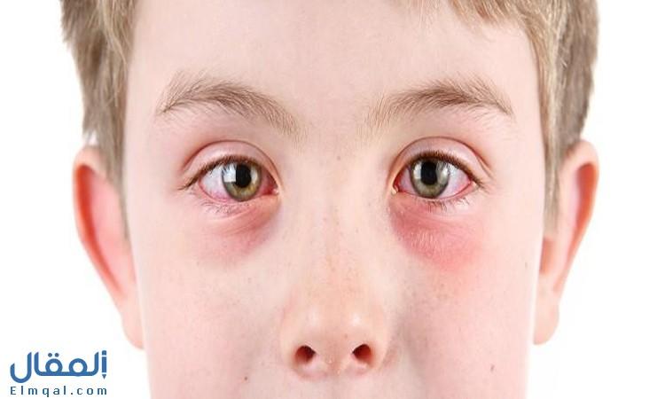 اعراض التهاب القرنية