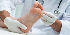 نصائح للعناية بالقدم أثناء مرض السكري للوقاية من المضاعفات